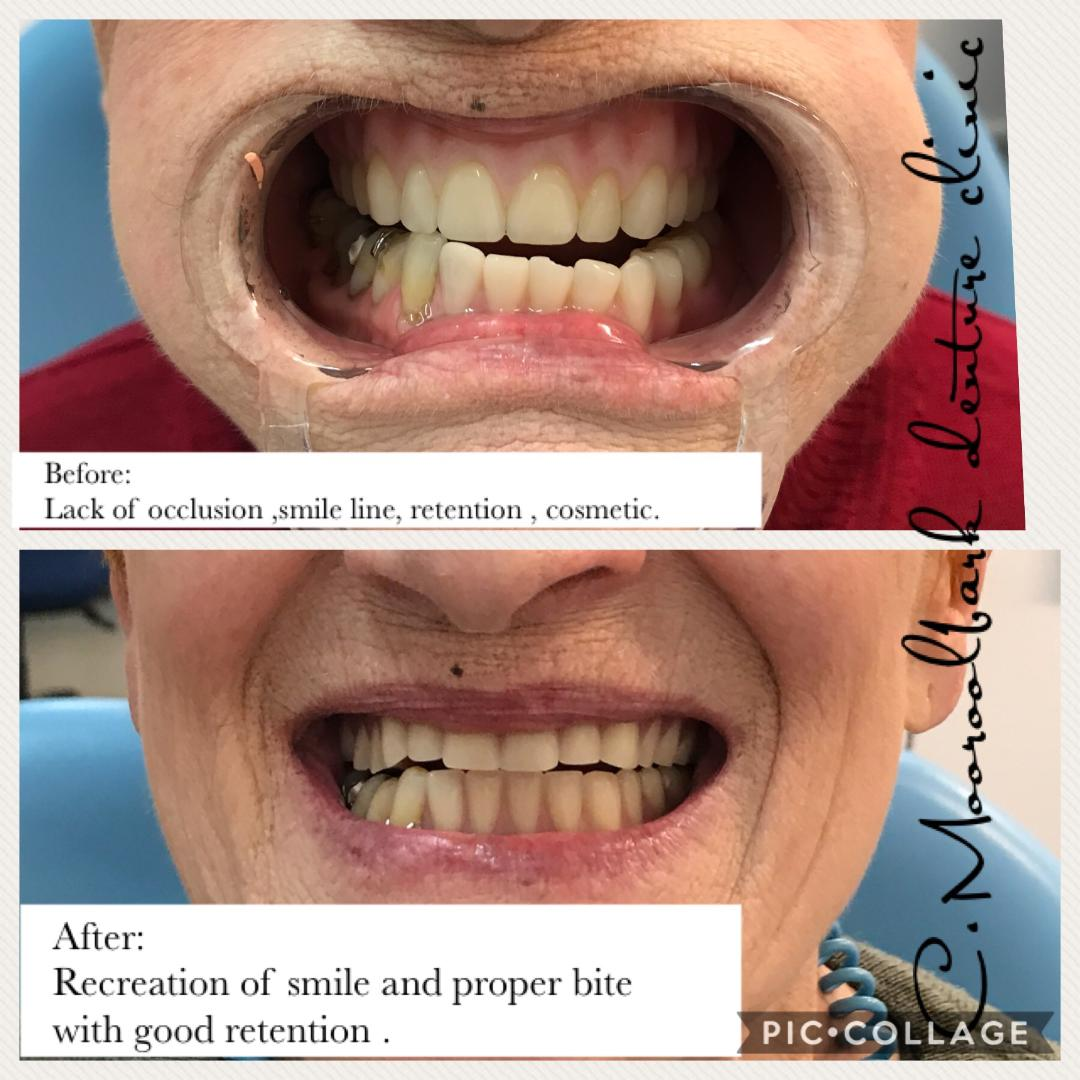 Full upper and Partial lower denture