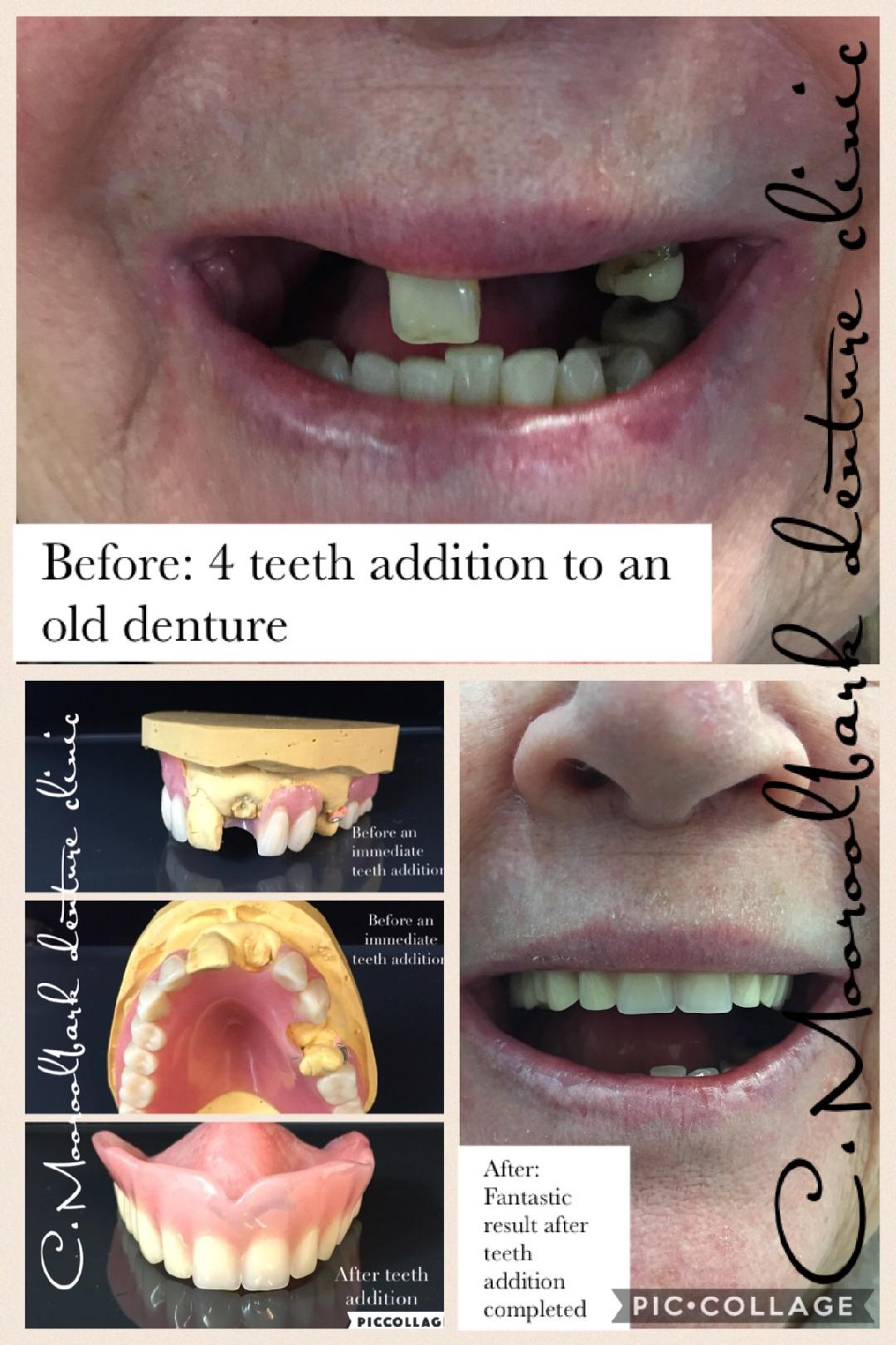 Teeth Addition to Partial Upper denture